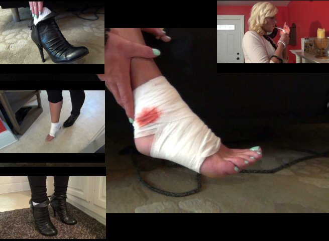 The Internet's Secretive Sprained Ankle Fetishists
